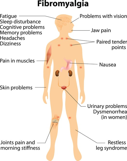 fibromyalgia occasion coffin nail pain