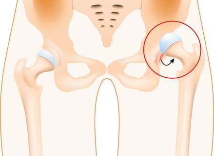 hip dislocation