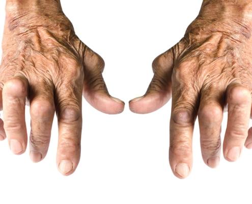 Arthristis