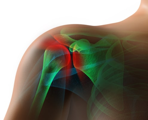 cartilage cause shoulder pain