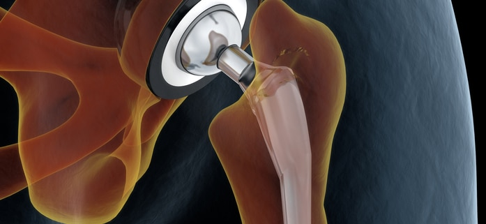 hip joint replacement