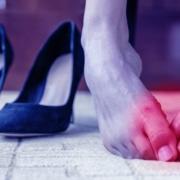 Bunion causing foot pain